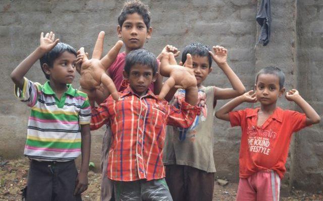 Zvláštní deformace. Chlapci nepřestávají růst ... 1