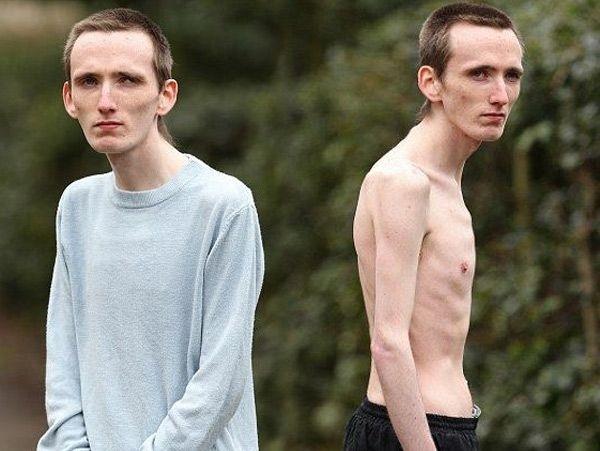 sikanovanie-anorexia-pena-cokoladova-marc-corn