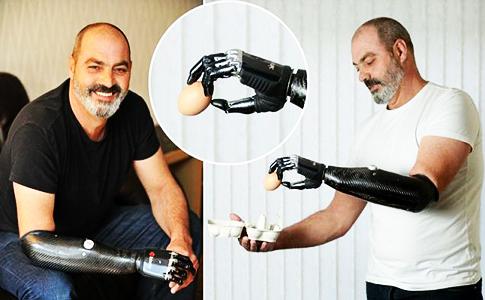 elite-daily-Nigel-Ackland-bionic-arm