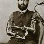 Protézy v minulosti, kvůli kterým pacienti trpěli 2