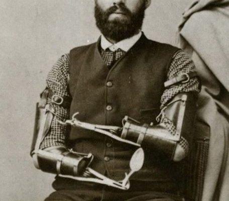 Protézy v minulosti, kvůli kterým pacienti trpěli 1