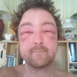 Alergie na moderní techniku? I takto vypadají nejdivnější diagnózy 6