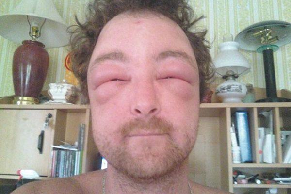 Alergie na moderní techniku? I takto vypadají nejdivnější diagnózy 1