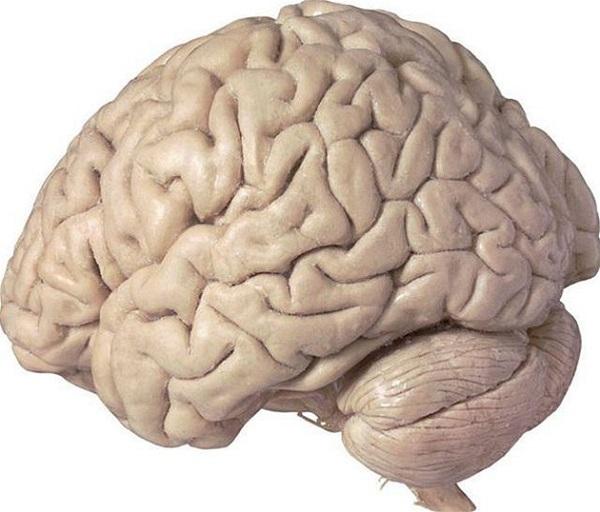 OFF1ab604_brain