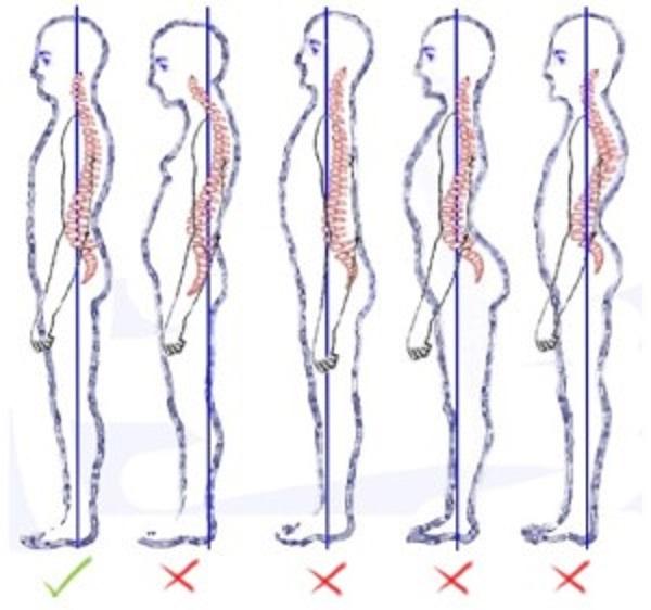 posture-2-300x281