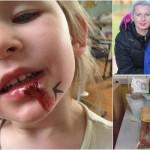 Ocelové dívka: necítí únavu, hlad ani bolest