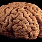 Dříve si pěstovali zeleninu, dnes již Japonci vypeštovali i část lidského mozku