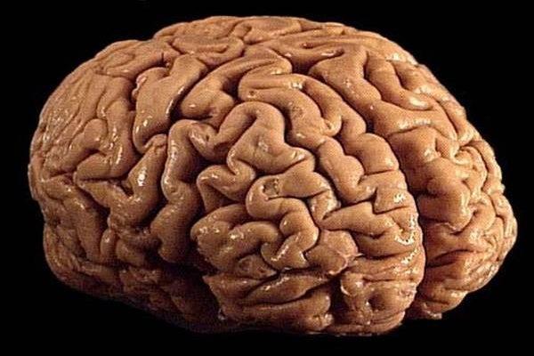Dříve si pěstovali zeleninu, dnes již Japonci vypeštovali i část lidského mozku 1