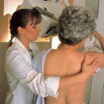 Mýty a fakta o mamografii: Je škodlivá a bolestivá? 3