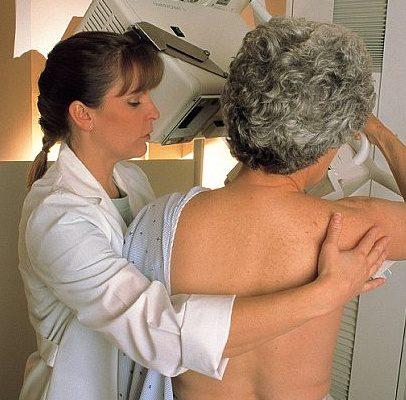 Mýty a fakta o mamografii: Je škodlivá a bolestivá? 1