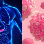 Rakovinu slinivky by mohl léčit upravený virus chřipky 3