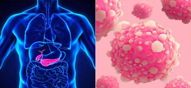 Rakovinu slinivky by mohl léčit upravený virus chřipky 1