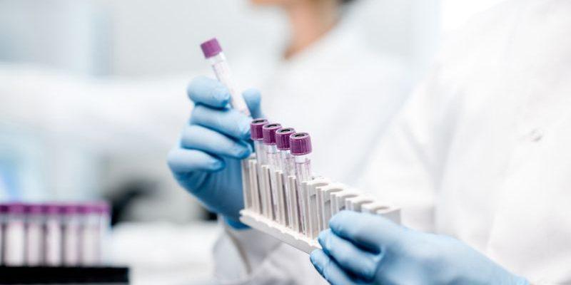 Antigenní test Clip COVID Rapid od Luminostics 1