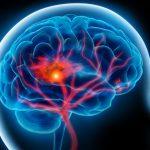 Riziko mozkové mrtvice je vyšší než očekávané u pacientů s covid-19 12