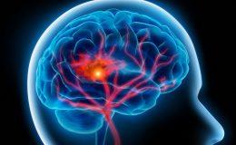 Riziko mozkové mrtvice je vyšší než očekávané u pacientů s covid-19 8