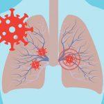 Třetina pacientů hospitalizovaných s covid-19 má rok po infekci změny v plicích 6